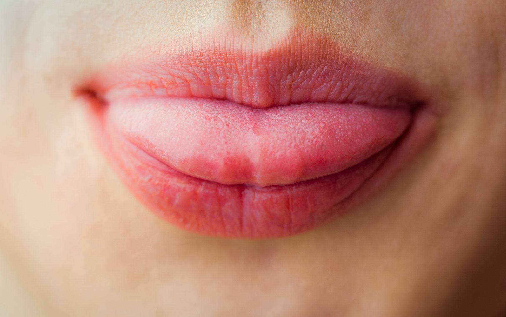 舌の色で「太りやすさ」をチェック!おすすめダイエットレシピ3選