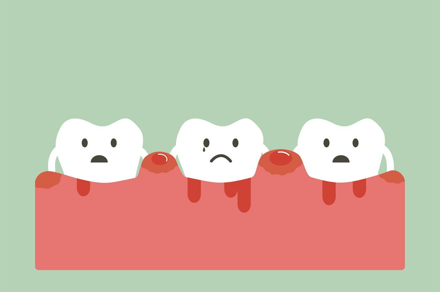 あなたは大丈夫?「歯周病チェックリスト」