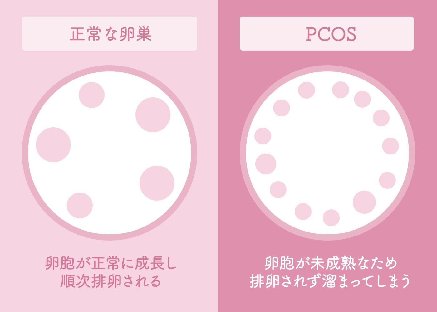 多嚢胞性卵巣症候群(PCOS)とは?