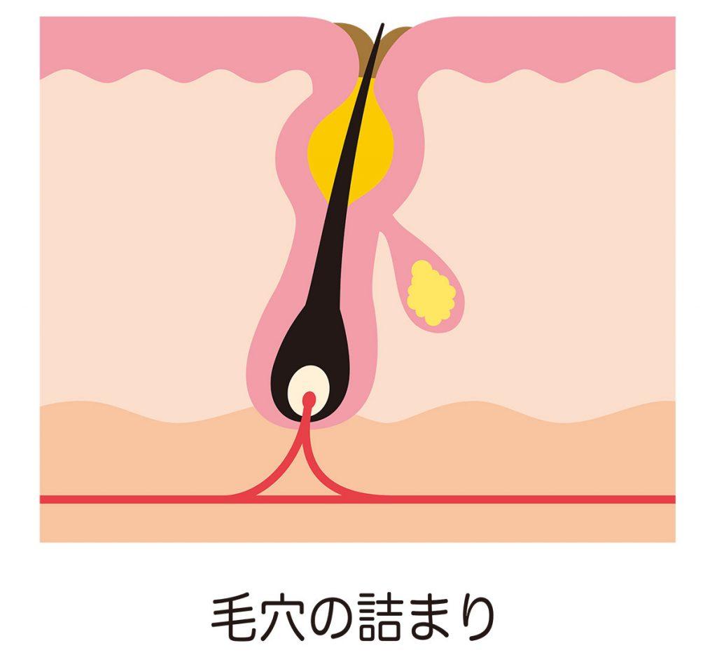 背中ニキビが慢性化しやすい理由