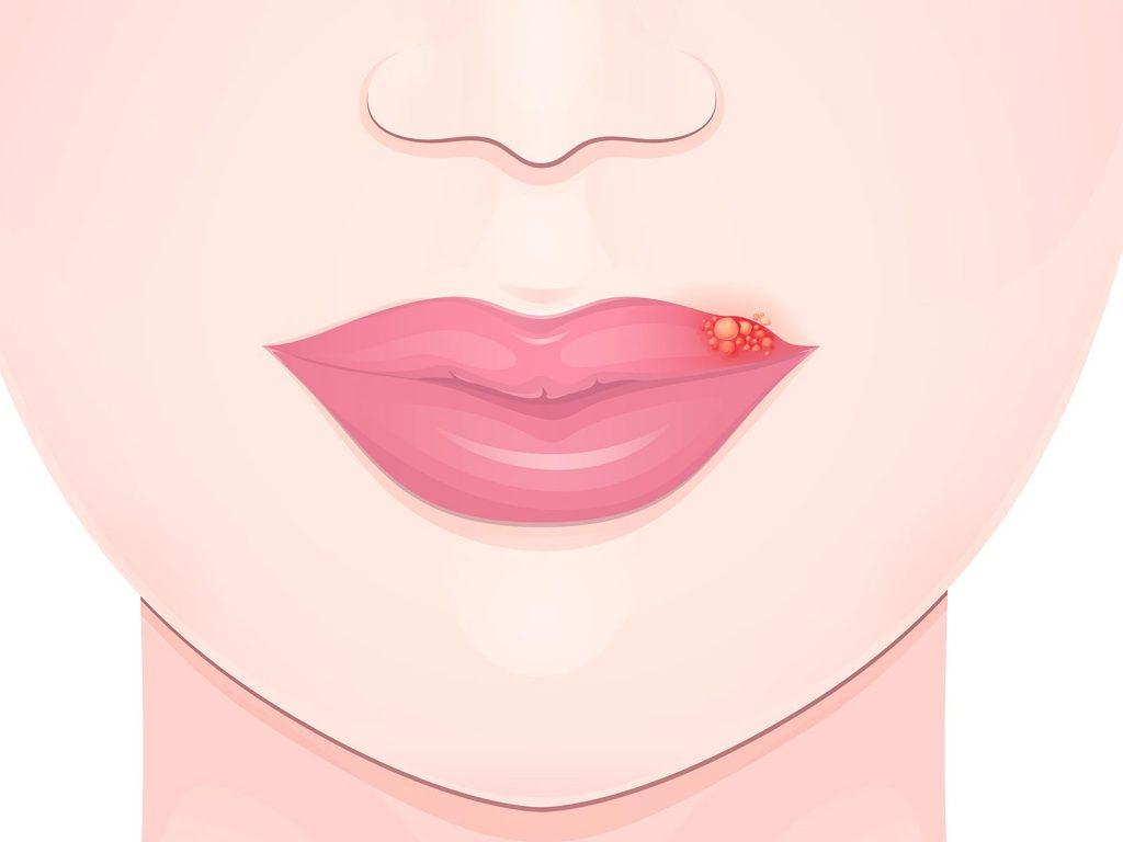 ヘルペス 唇