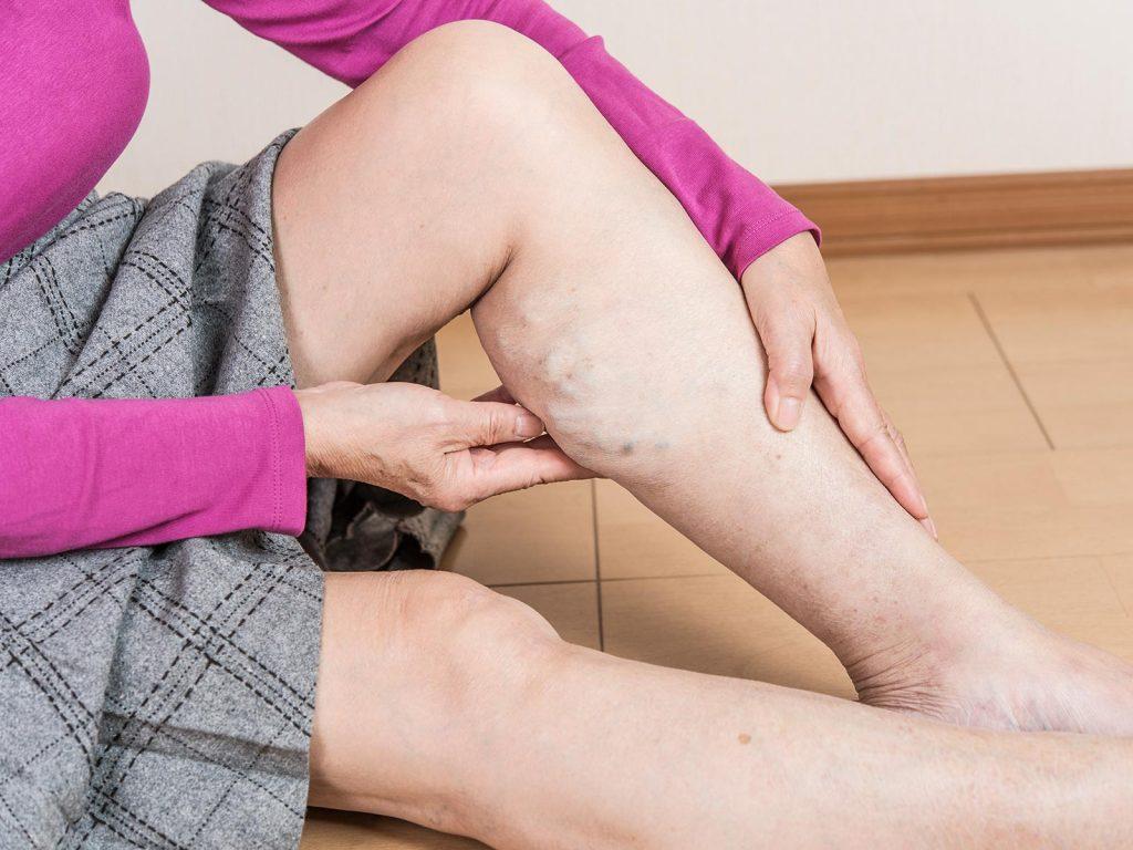 下肢静脈瘤は身近な血管疾患