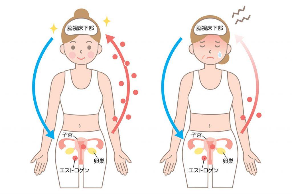 更年期障害はホルモンバランスの乱れが原因