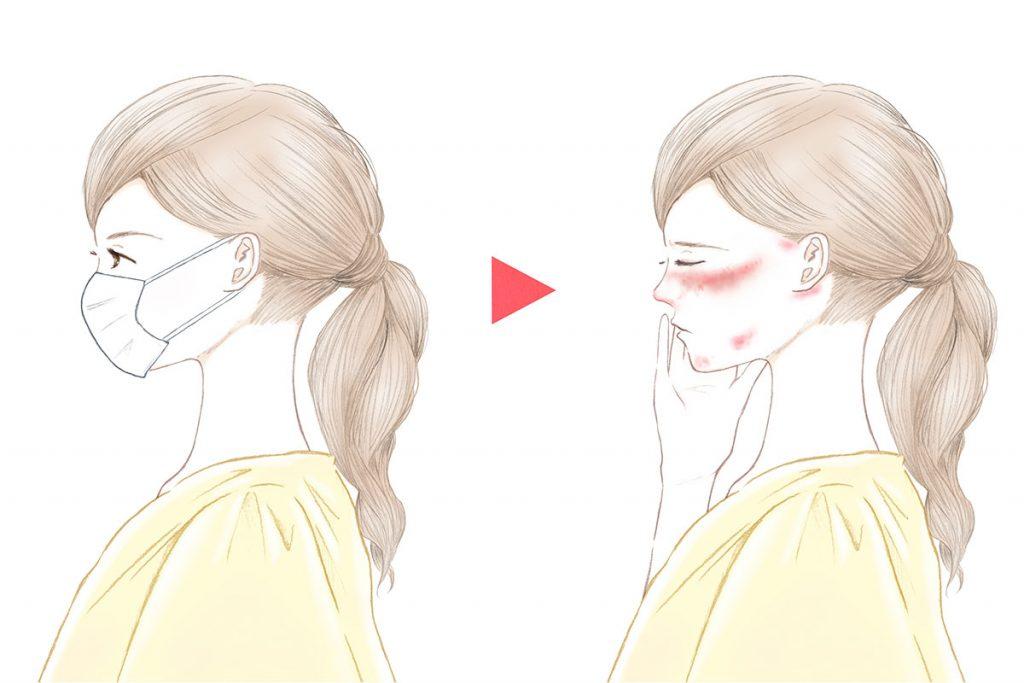 接触性皮膚炎の種類とその原因