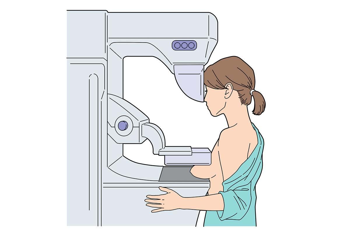 コロナ禍でも乳がん検診は受けてほしい